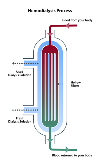Hemodialysis-Dialyzer-Illustration