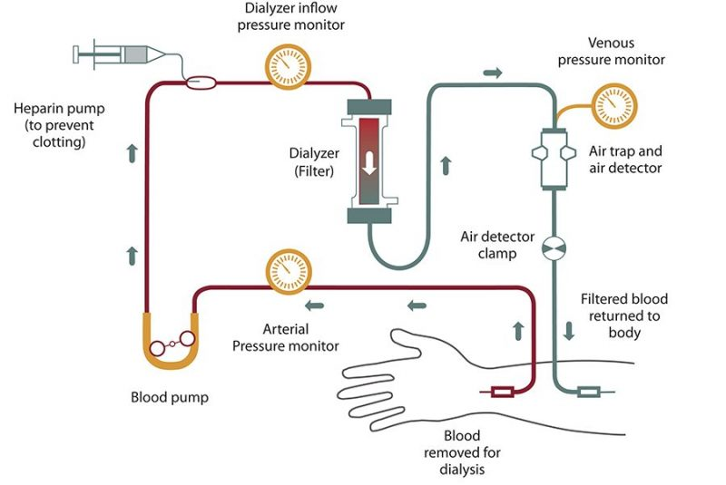 NKDEP_Hemodialysis_Illustration